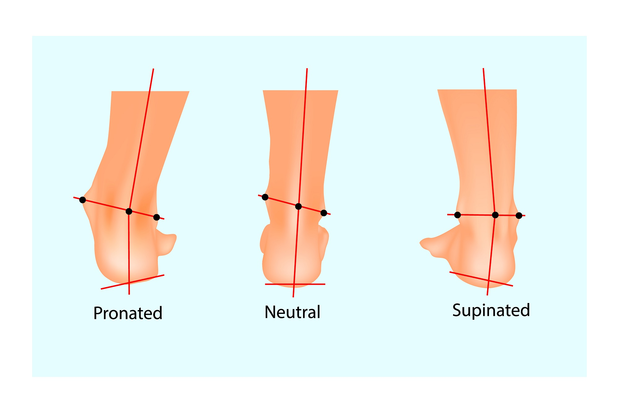 new arrival b32f9 a15f7 Overpronation: What It Is and How It Can Derail Running - On ...