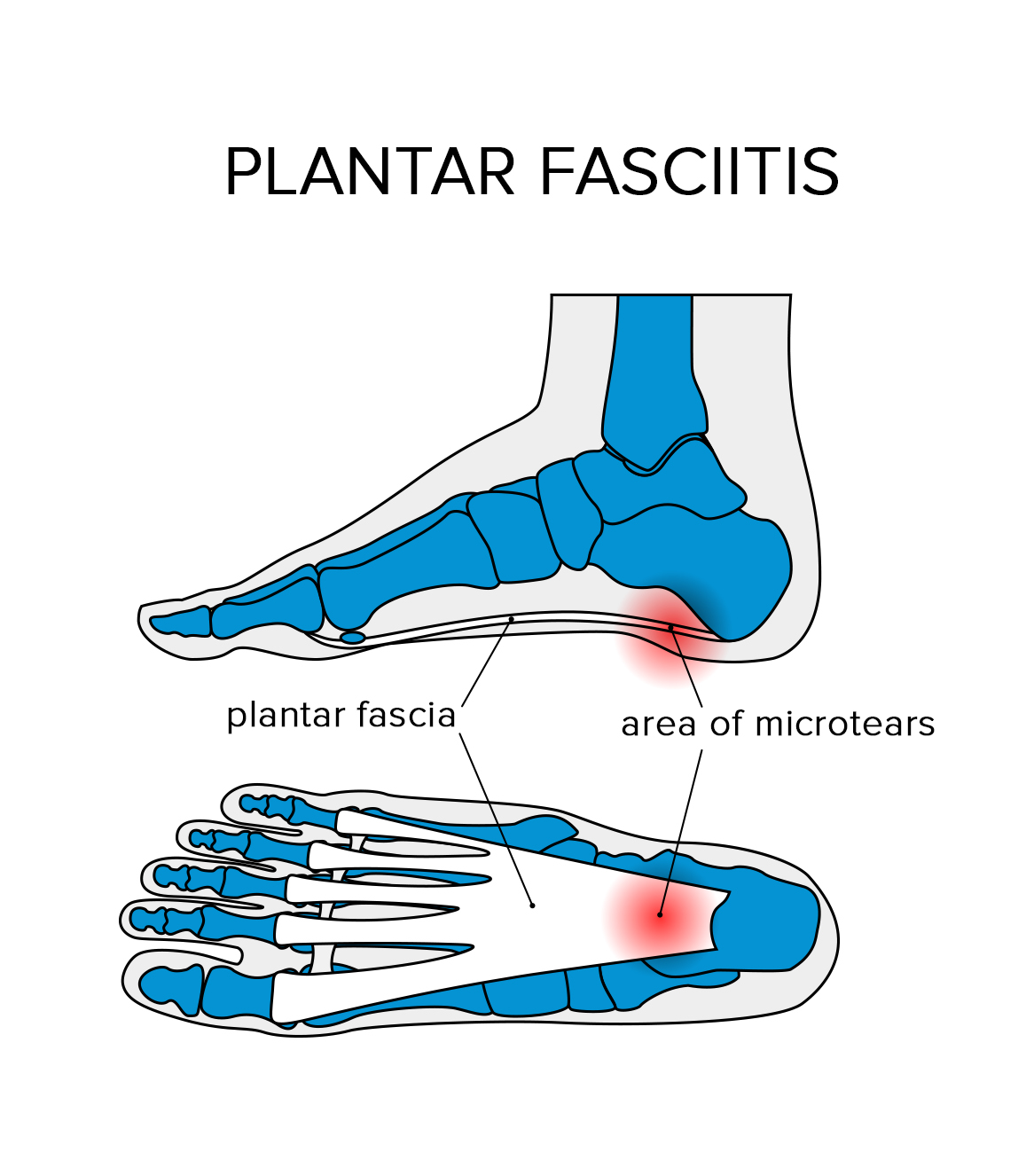 Exercise Bands Plantar Fasciitis: How To Treat Plantar Fasciitis: 5 Exercises & Stretches To