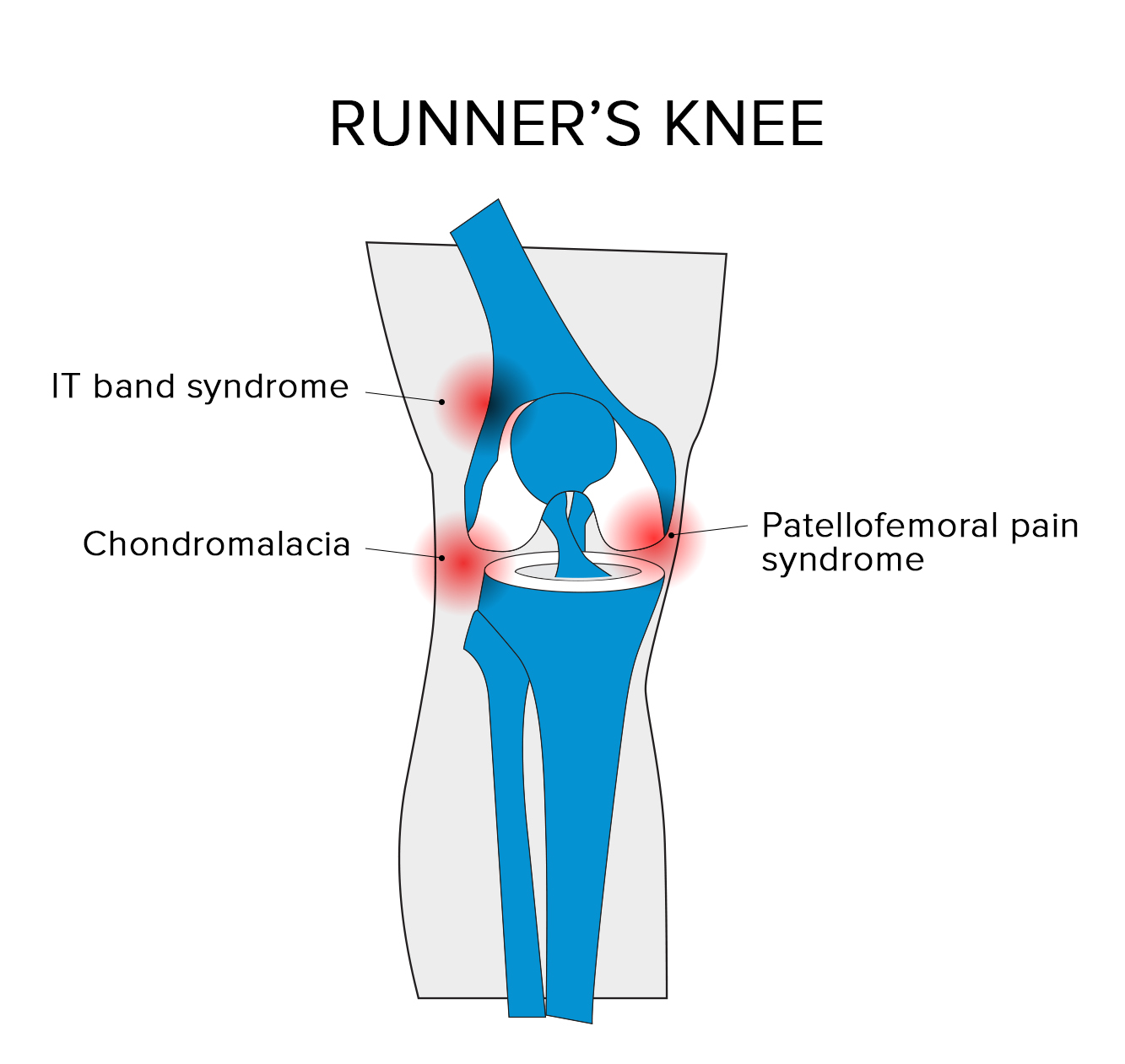 Runners Knee Runners Knee Treatment Recovery Exercises Guide