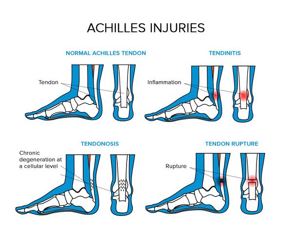 Sore Achilles Tendon \u0026 Heel After